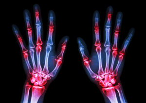 viral-arthiritis